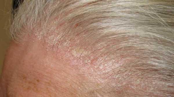 Болячки на лице и голове