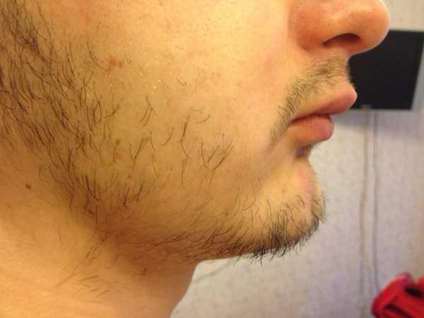 Почему плохо растет борода и что делать чтобы разбудить луковицы