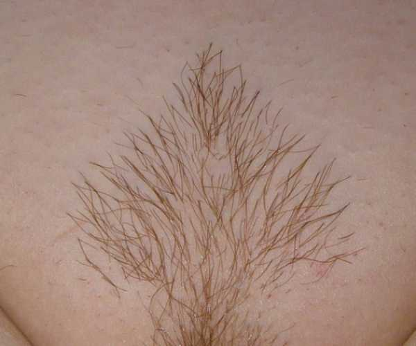 оренбурге стрижка лобковых волос у мужчин фото многие замечают, что